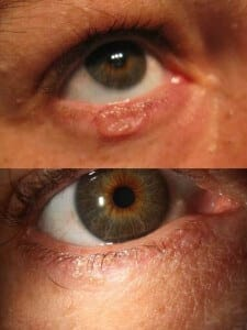 before and after treatment of basal cell carcinoma with cryotherapy without surgery