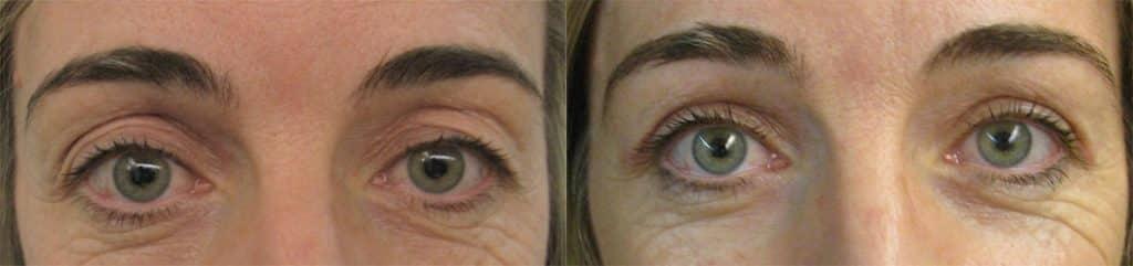 Abans i després d'operació de blefaroplastia superior
