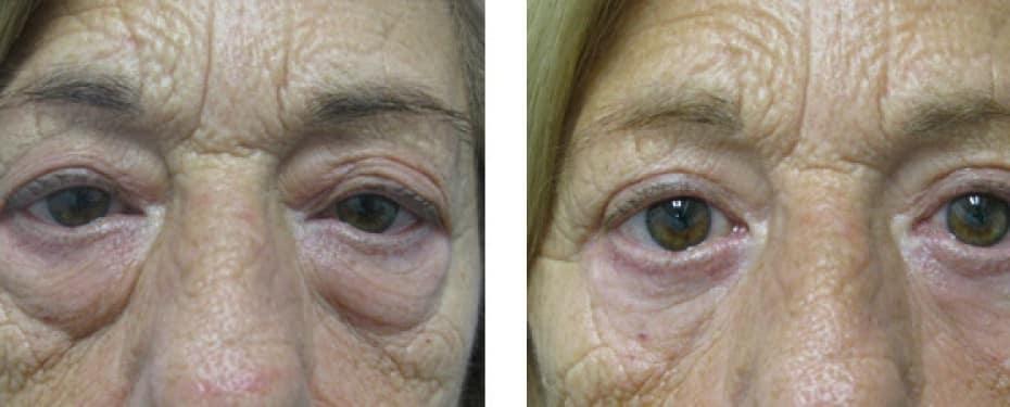 Blefaroplastia superior e inferior de bolsas de ojos