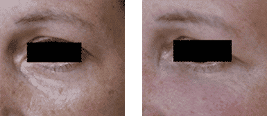 Before and after treatment of dark circles with hiluronic acid.