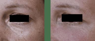 Abans i després del tractament de les ulleres amb àcid hilurònic.
