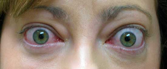 Retracció palpebral i exoftalmos en pacient amb orbitopatía tiroidal