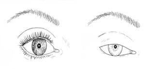 Droopy Eyelid Drawing